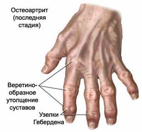 Медицина деформация суставов вытягивающее средство для суставов