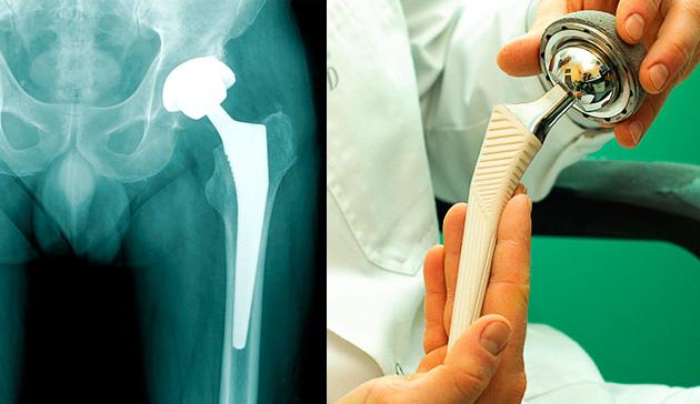 Боли после эндопротезирования тазобедренного сустава отзывы артроз суставов стоп лечение народными средствами