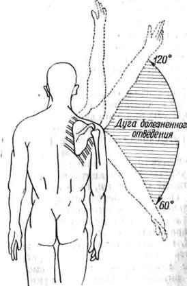 Болит плечевой сустав не могу поднять руку как лечить