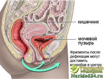 Профилактика и лечение хронического цистита