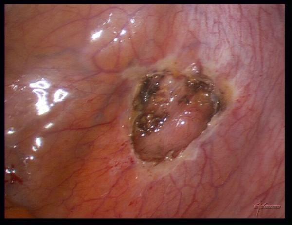 Лечение эндометриоза