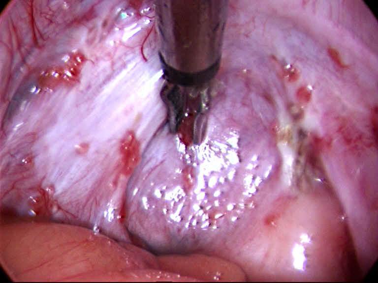 Эндометриоз при климаксе (менопаузе) симптомы и лечение
