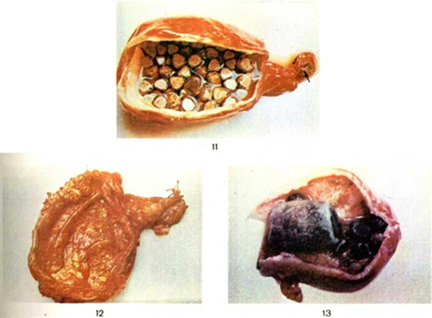Вред куриной печени для человека