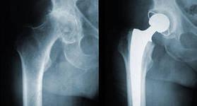 Дискенезия тазобедренного сустава истории болезни по травматологии повреждение мениска коленного сустава