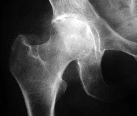 Коксартроз тазобедренного сустава рентгенологическая картина магнитотерапия для суставов в домашних условиях