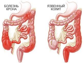 питание при неспецифическом язвенном колите кишечника