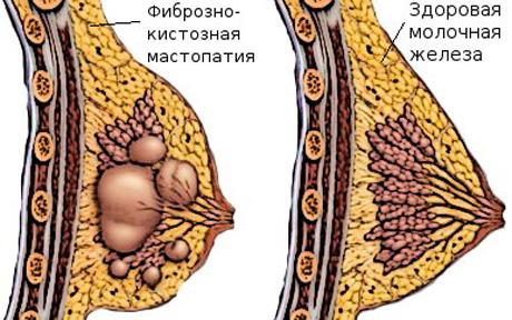 Грудной остеохондроз у женщин связь с мастопатией