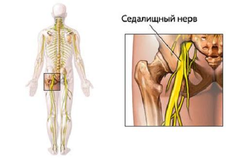 Невропатия седалищного нерва лечение.