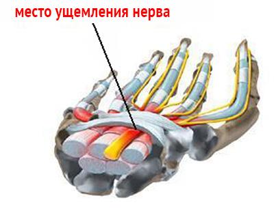 Невропатия срединного нерва лечение