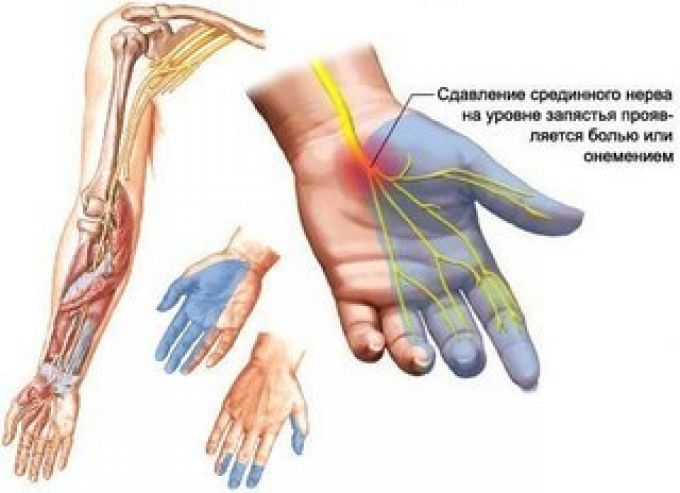 боль в лучевых нервах рук