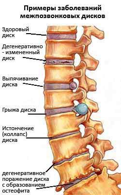 Боль в позвоночнике посередине спины упражнения