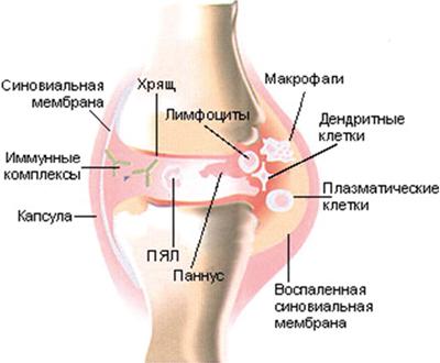 Разрастание синовиальной оболочки коленного сустава атерома сустава