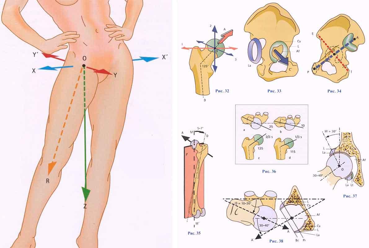 Боли мигрируют по всей спине