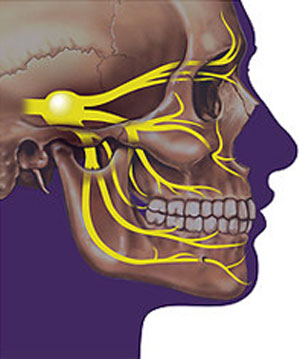 Невралгия тройничного нерва реферат 8281