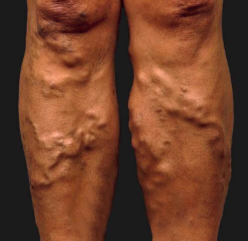 Осложнения после удаления вен на ногах